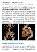 Piktogramm des Artikels Gefaesschirurgie im Wandel