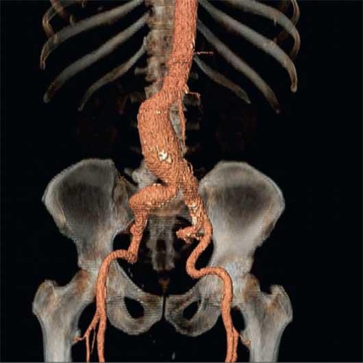 Bild einer CT-Rekonstruktion eines abdominellen Aortenaneurysma