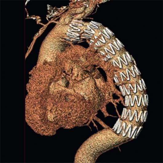 Bilder einer CT-Rekonstruktion nach Implantation einer thorakalen Endoprothese